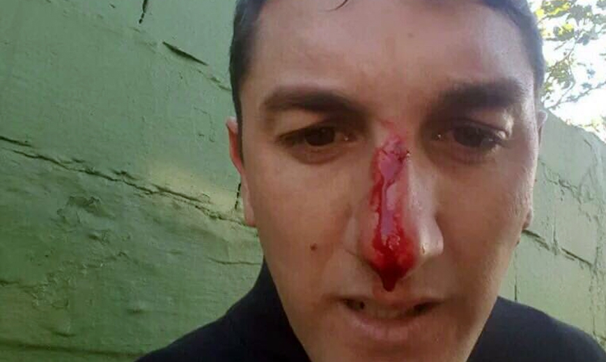 Fútbol uruguayo más inseguro. Un dirigente le rompió la cara al entrenador de su club
