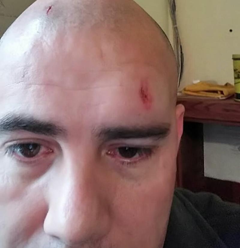 Esta es la cara que tiene hoy el arbitraje de la OFI, por culpa de los violentos