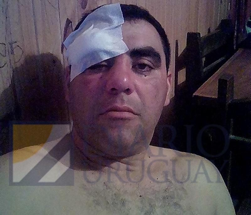 ¿Otra vez sopa? Repudiable paliza le dieron a otro árbitro de fútbol de Durazno