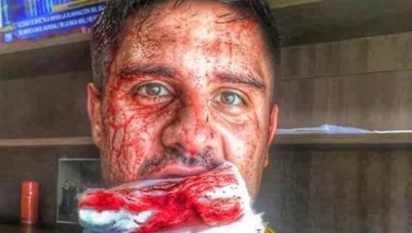 Brutal imagen del jugador de Peñarol, Ramón Arias, lesionado por otro compañero en la práctica del equipo